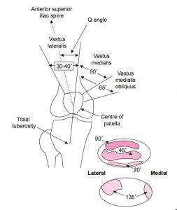 sindrome patelo femoral